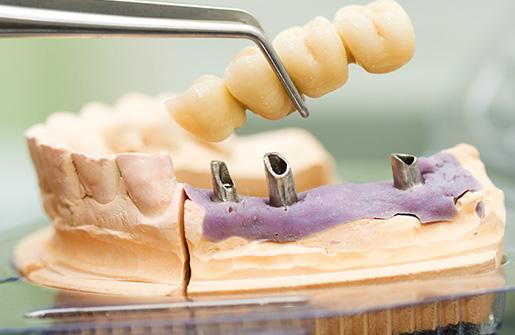 Dental bridges treatment options at ClearCare Periodontal & Implant Centre